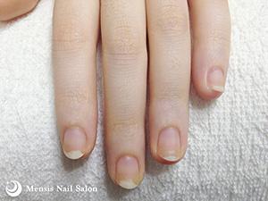 S.S様の深爪矯正02