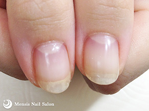 Y.M様の深爪矯正親指04