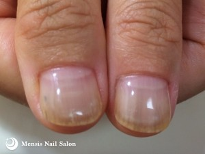 A.S様の深爪改善親指