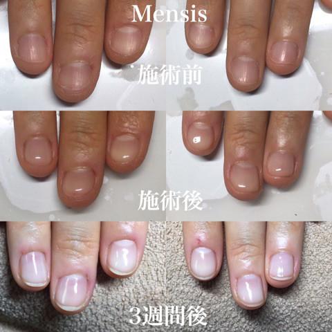 深爪矯正の施術例01