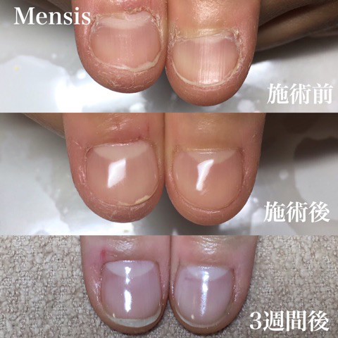 深爪矯正の施術例02