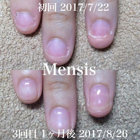深爪矯正の施術例03
