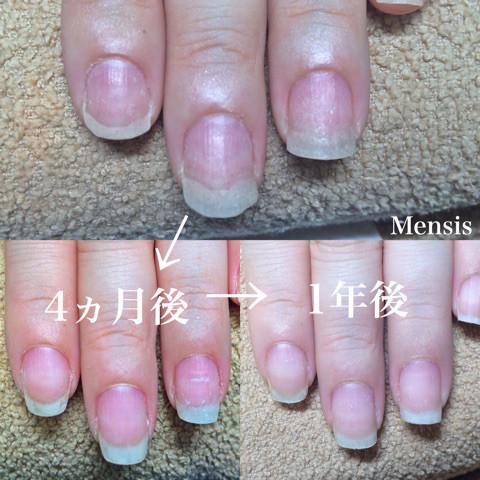 深爪矯正の施術例04