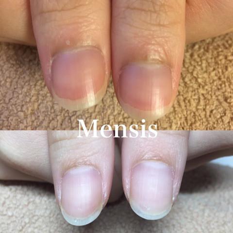 深爪矯正の施術例10