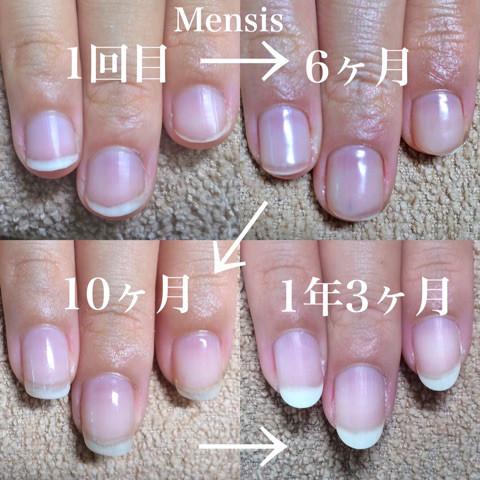 深爪矯正の施術例11