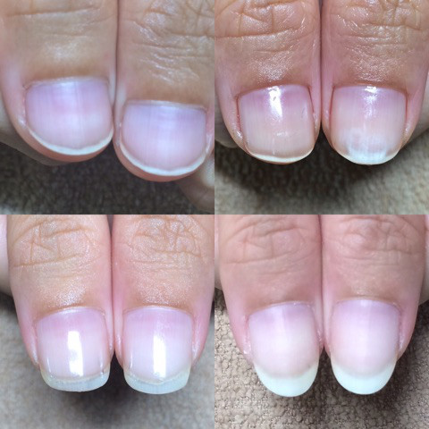 深爪矯正の施術例12