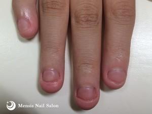 K様の深爪改善