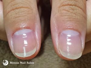 K様親指の深爪改善